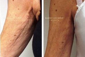 HIFU Skin Tightening - Before and After Treatment