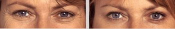 Anti-wrinkle Botox Treatment to Soften Eye Lines & Wrinkles