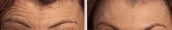 Botox Anti-wrinkle Treatment to Get Rid of Forehead Lines