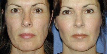 Cheek Augmentation Treatment - Before and After Picture