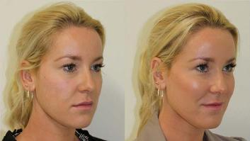 Cheek Enhancement Treatment - Before and After Picture