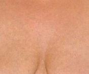 Chest Wrinkles - After Treatment