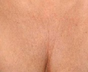 Chest Wrinkles - Before Treatment