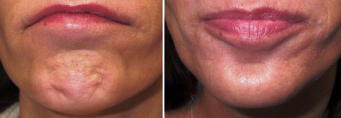 Chin Dimple Removal using - BOTOX - Before and After Picture