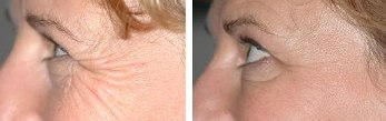 Eye Wrinkles -  Before and After Anti-wrinkle Treatment