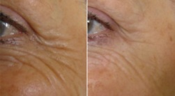 Softening of Eye Lines using BOTOX -  Before and After