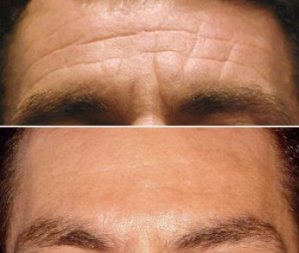 Forehead Lines Men - Botox Treatment - Before and After