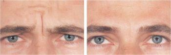 Glabella Lines Men - Botox Treatment - Before and After