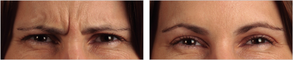 Botox for Frown | Glabella Lines - Before and After