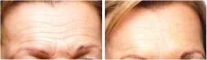 Dermal Filler for Frown Lines - Before and After