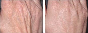Hand Wrinkles - Before & After Treatment