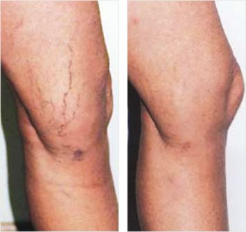 Leg Thread Veins - Before and After