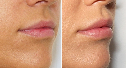 Lip Fillers - Before and After