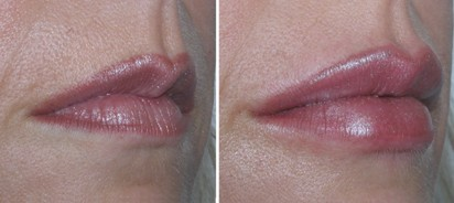 Lip Fillers - Before and After Picture