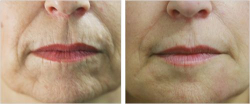Lines & Wrinkles around mouth - Before and After