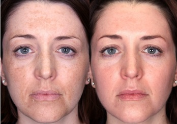Melasma Treatment Before and After Glycolic Chemical Peel
