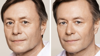 Before and After Eye Line | Crows Feet Treatment - Men