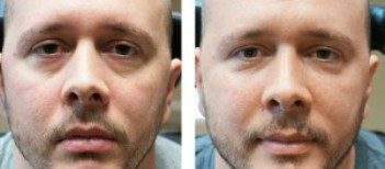 Tear Trough Treatment Men - Dermal Filler Treatment - Before and After