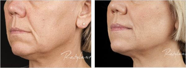 Restylane Treated Marionette Lines - Before and After