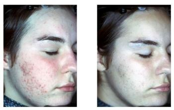 Before and After Glycolic Chemical Peel Treatment