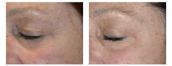 Before and After Eye Wrinkle Treatment