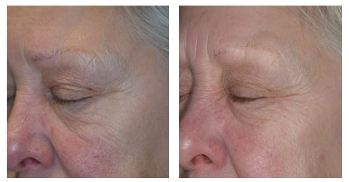 Before and After Chemical Skin Peel Treatments