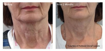 Profhilo - Neck Before and After Treatment