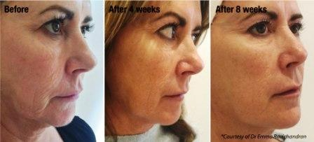 Profhilo - Face Before and After Treatment