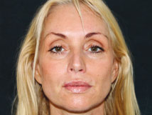 Radiesse dermal filler - After Photo