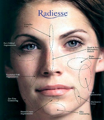 Radiesse Dermal Fillers -- Treatment Areas
