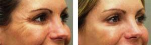 Crows Feet - Before and After Botox Treatment