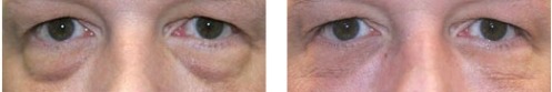 Tear Trough Treatment for Men - Dermal Filler Treatment - Before and After