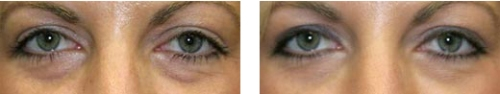 Tear Troughs Treatment - Before and After Picture