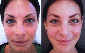 Chemical Peel - Face Before and After Treatment