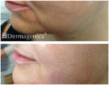 Thread Lift Treatment - Before and After - Marionette Lines