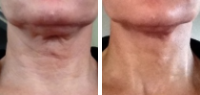 Neck Lift - Before and After PDO Thread Lift Treatment