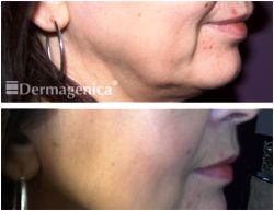 Marionette Lines - Before and After Thread Lift Treatment