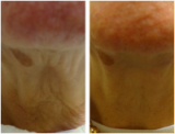 Neck Thread Lift Treatment - Before and After